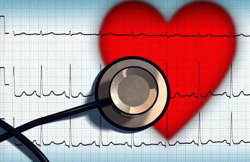 fibrilacao arterial